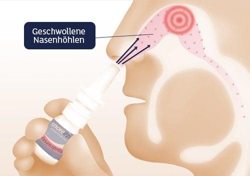 Schnarchen mit verstopfter Nase